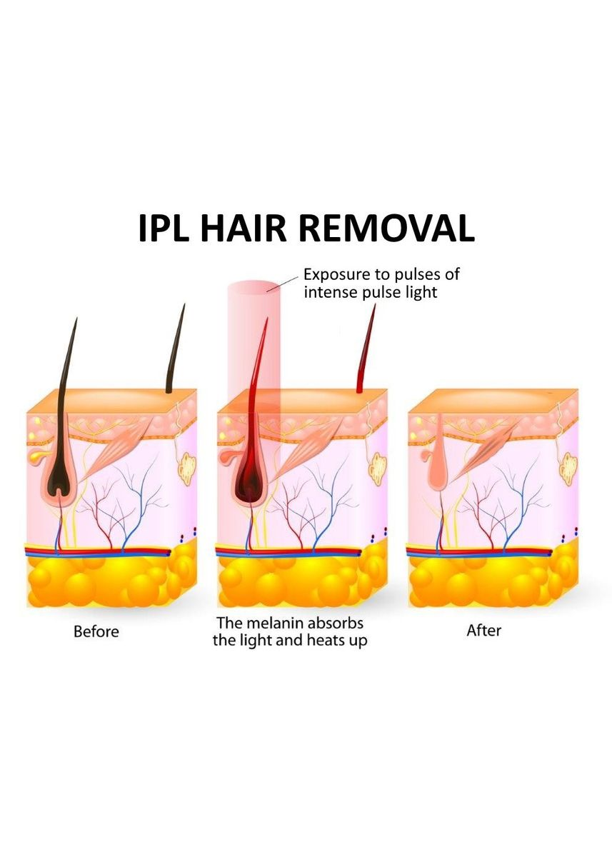 White color Tools . IPL Permanent Hair Removal -
